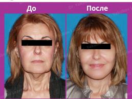 %Блефаропластика в Ташкенте%